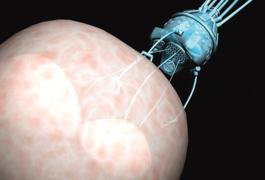Newly developed microscopic robots, inspired on bacteria, will be able to perform small surgeries thanks to their flexibility and softness. Photo credit: Nanotechnology News Network / Yale Scientific