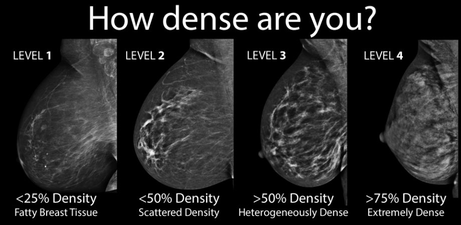 As seen above, a chart with detailed information on breasts' density levels. Image Credit: Nature