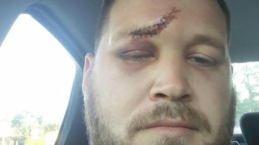 Sanders took a selfie after he got the proper treatment for his wounds showing a massive hit on his forehead. His girlfriend and her ex-husband are currently in custody. Image Credit: WSOCTV