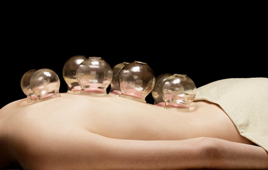 Cupping is an alternative form of pain relief through which a flexible cup is placed on the skin on sore muscles, and sucks the skin up into the cup.  Photo credit: Wild Woods Yoga & Wellness