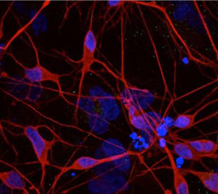 Parkinson's disease protein
