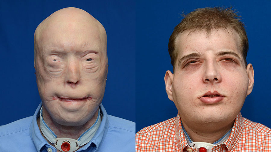 patrick-hardison-face-transplant