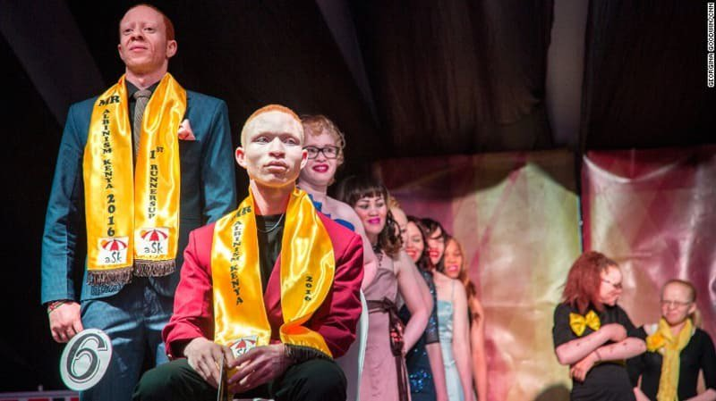 First albino beauty pageant in Kenya