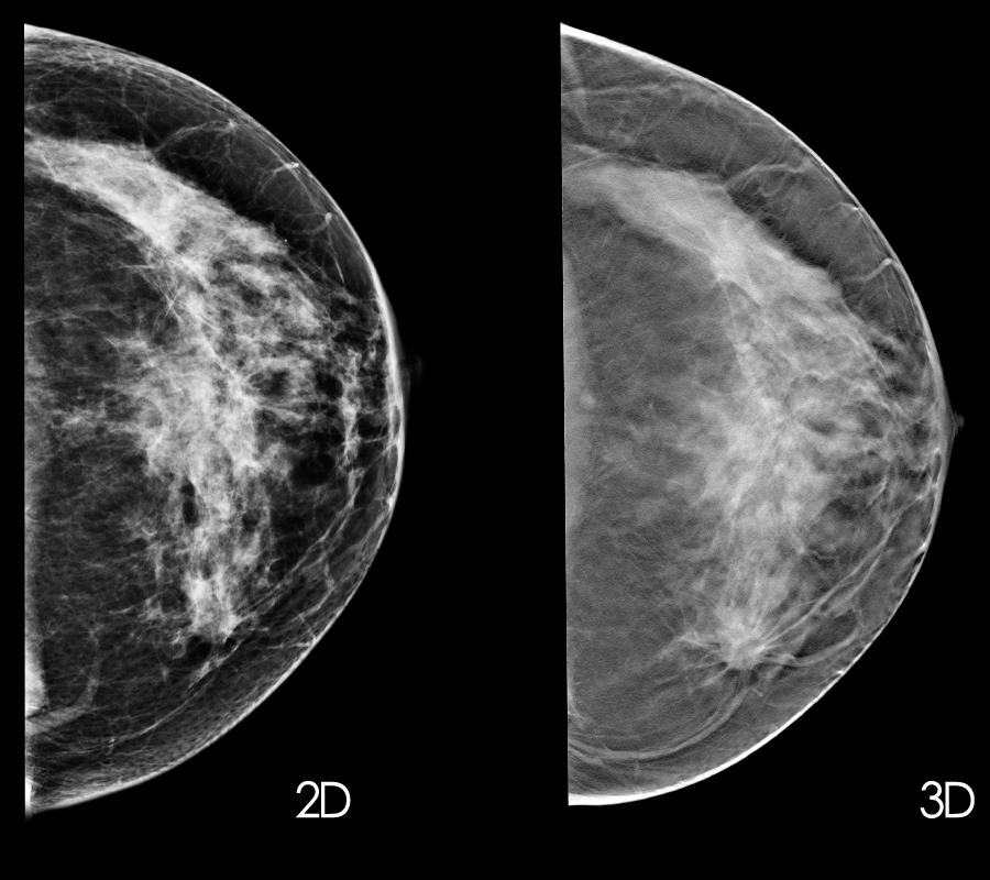 Mammogram, Breast Cancer