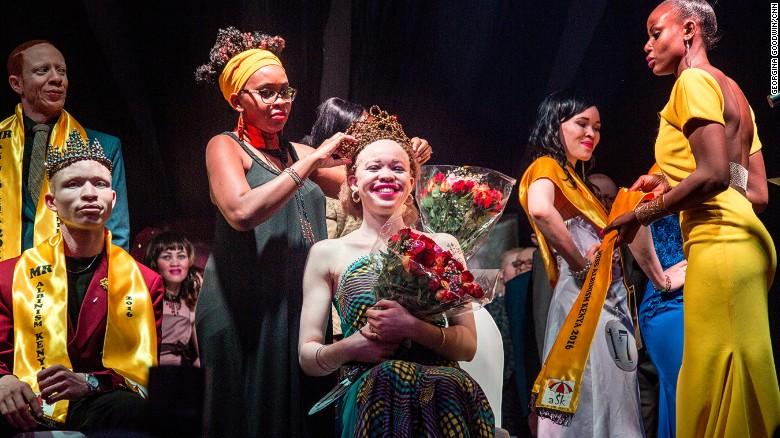 First albino beauty pageant in Kenya
