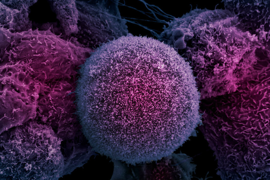 New laser therapy can effectively kill prostate cancer cells. Photo credit: Advancedprostatecancerinstitute.com / Mindsofmalady.com