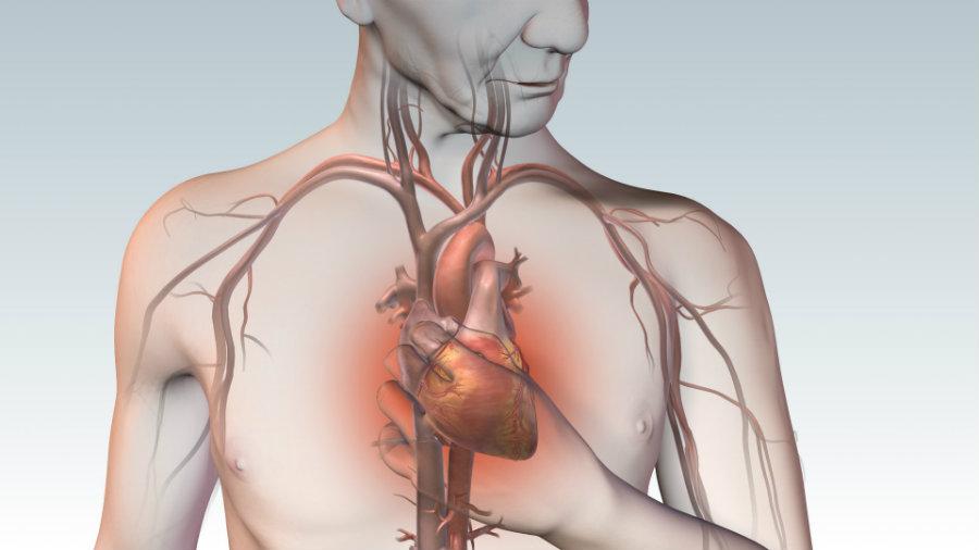 Image credit: Cardiac Care Network