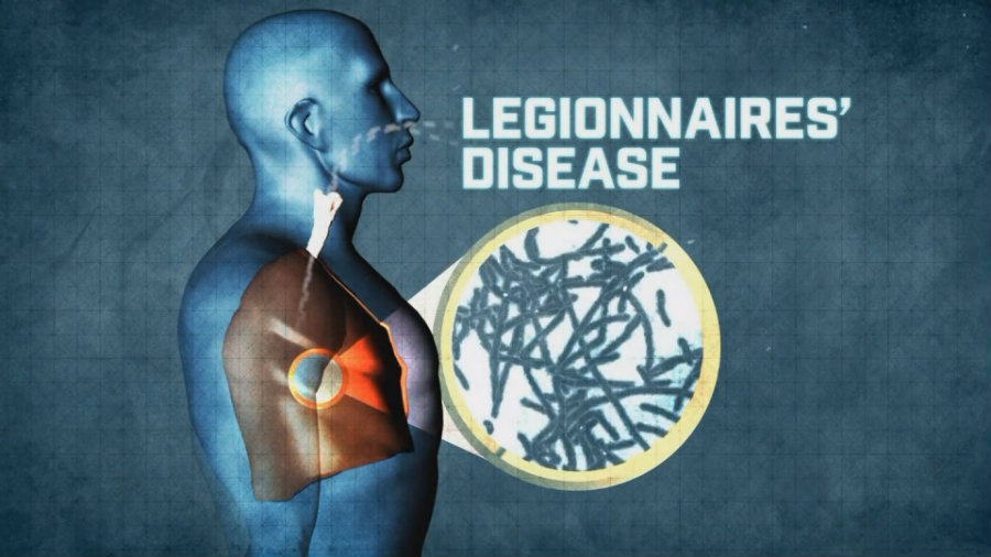 Legionella bacteria can cause a severe type of pneumonia which is what it's known as Legionnaires' disease. Image credit: WRGZ.com