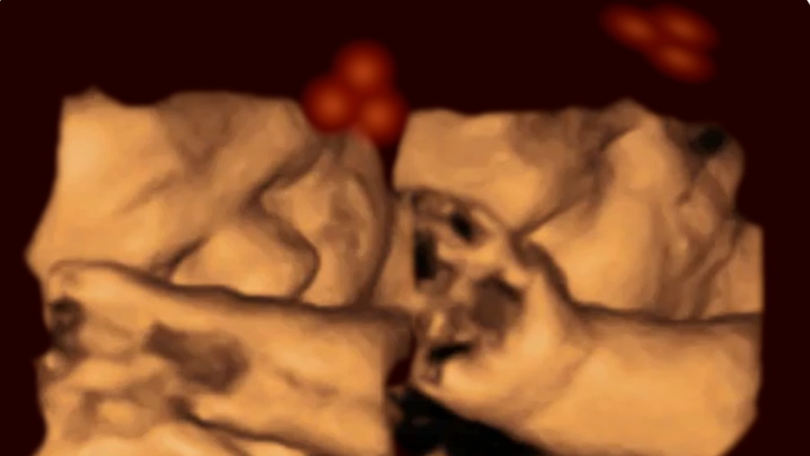 Ultrasound of fetus
