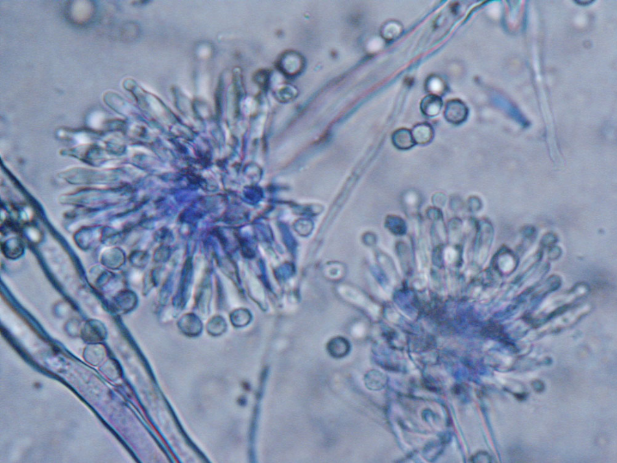 """Aspergillus Versicolor, a potent producer of sterigmatocystin (STG), is one of the most frequent fungal contaminants of indoor environments that can be found together in building materials, in dust or in the air samples."" Image Credit: MYCOTA"