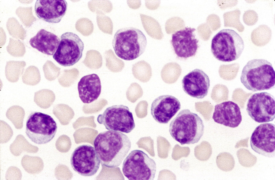 FDA advisory committee recommends approval of T-cell 'living drug' to treat leukemia. Image credit: Blood Journal