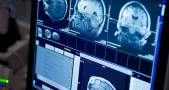 Brain Tumor MRI. Image Credit: Mayo Clinic