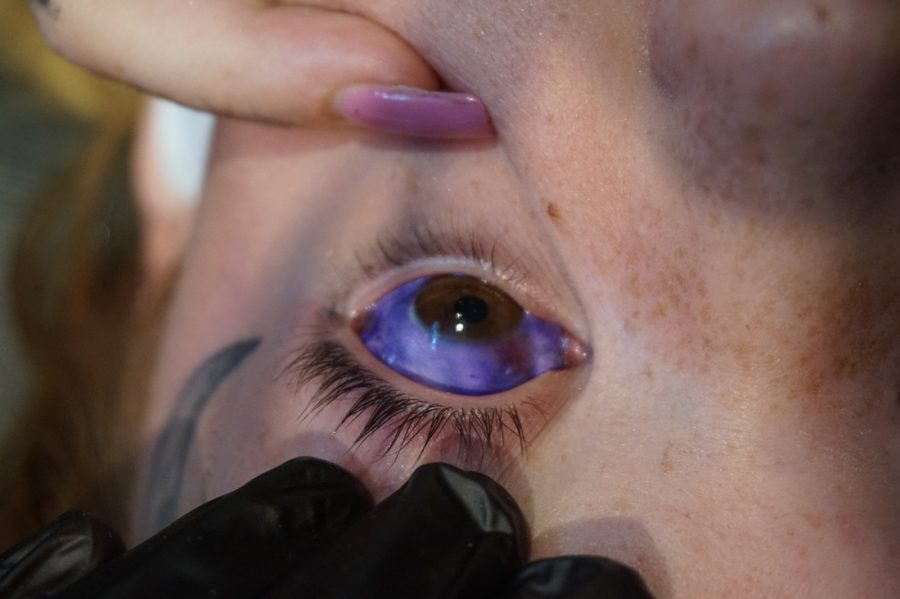 A scleral tattoo performed correctly. Image credit: Dylan Riverdale