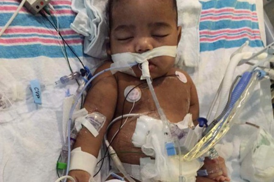 Kidney transplant delayed for 2-year-old, Atlanta 2-year-old kidney transplant