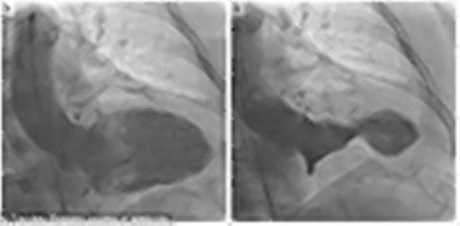 Takotsubo cardiomyopathy, Broken Heart syndrome