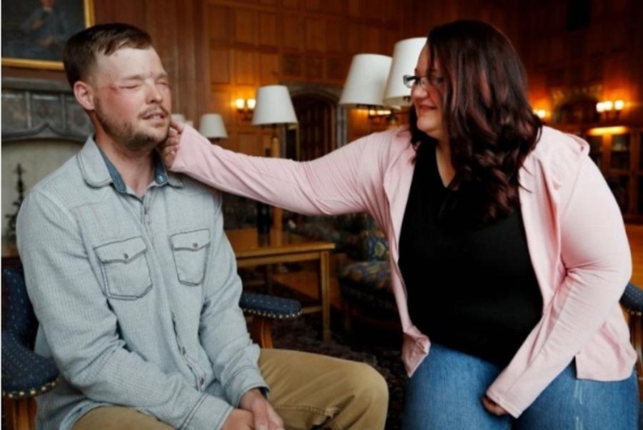 Mayo Clinic, Face transplant Minnesota, Andy Sandness