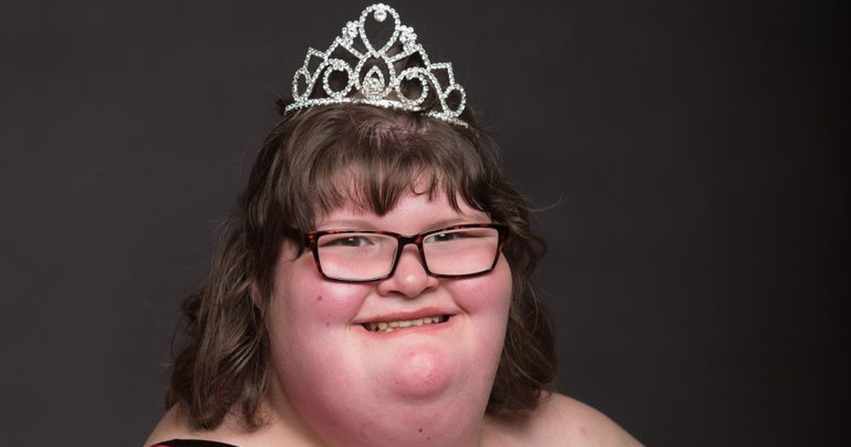 Prader–Willi syndrome, pageant