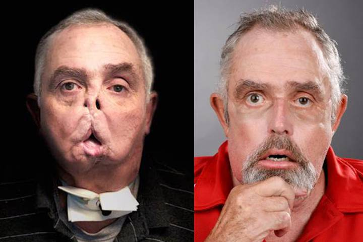 Face Transplant Patient Maurice Desjardins