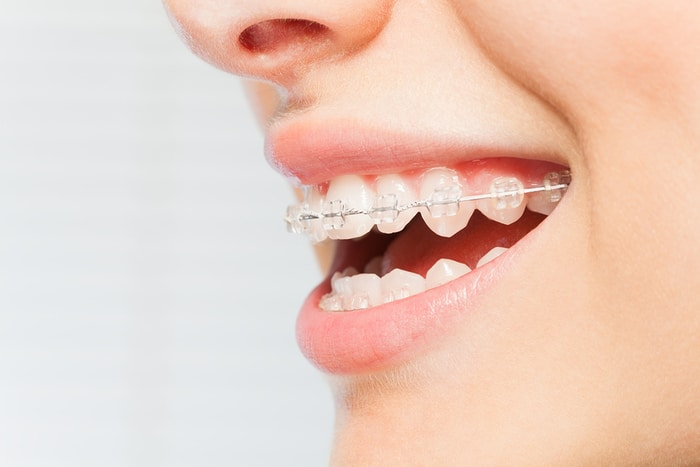 What You Need to Know Before Getting Braces