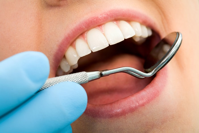 Which Teeth Whitening Option is Best For You?