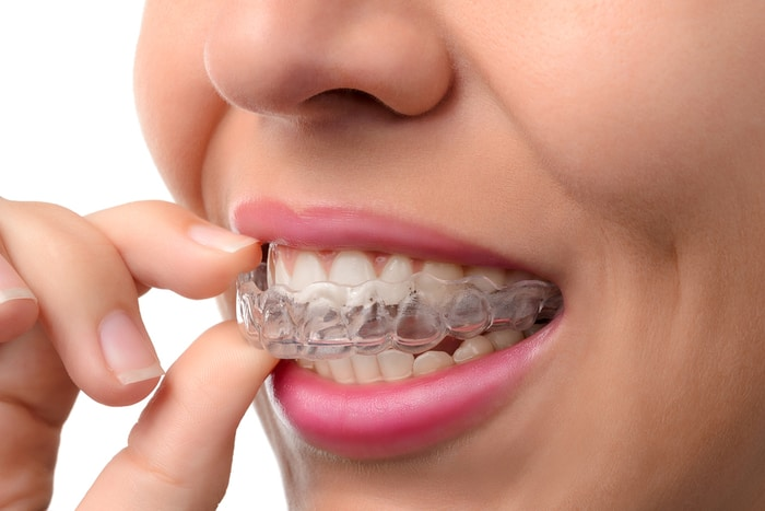 How To Know If Invisalign Is Right For You