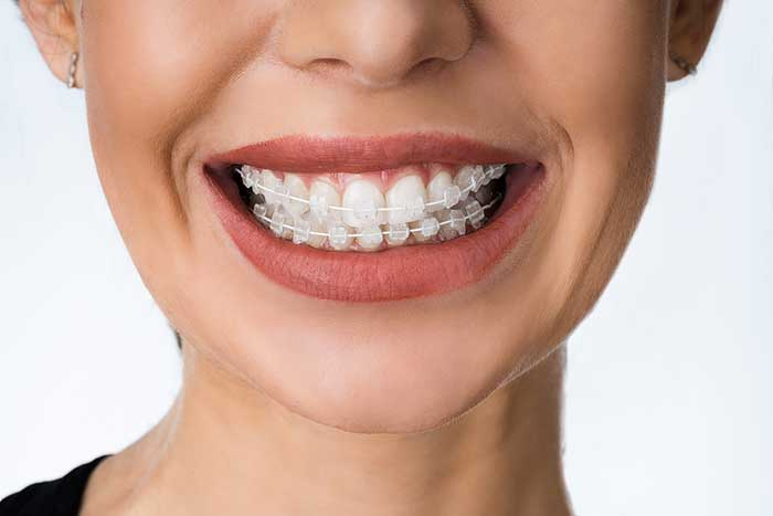 Discovering The Truth: Is Invisalign as Effective as Braces?
